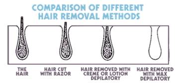 comparision of different hair removal methods